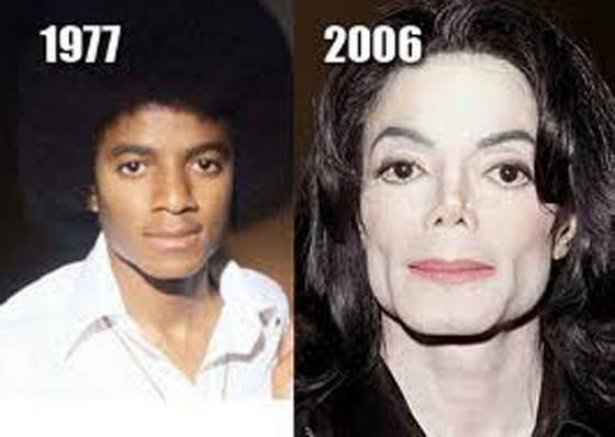 Michael Jackson before and after plastic surgery (image hosted by tiptoptens.com)