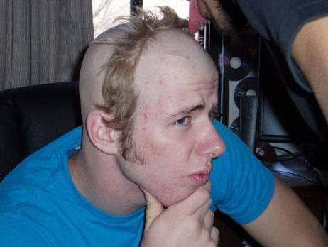 worst hairstyles 2 10 Hairstyles You Would Never Want to Have