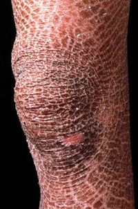 1. Ichthyosis e1319791341749 10 Very Rare Diseases Found in Human Body