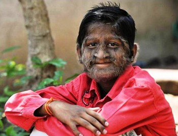 10. Werewolf Syndrome
