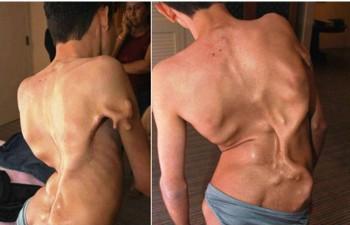 2. Fibrodysplasia ossificans progressive e1319791224335 10 Very Rare Diseases Found in Human Body
