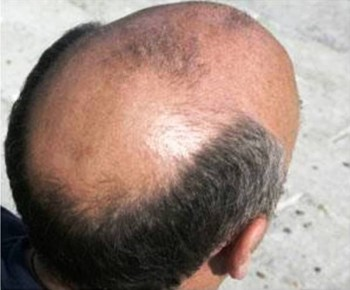 4. Baldness In Front of the Head e1319735345843 10 Things That You Probably Dont Know About Muscular Dystrophy   [FACTS]