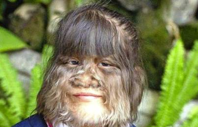 4. Hairiest Teenager 10 More Bizarre World Records