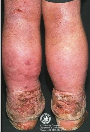 8. Elephantiasis e1319790887980 10 Very Rare Diseases Found in Human Body