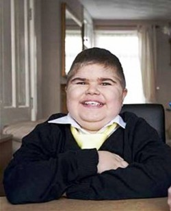 8. It could cause Obesity e1319735155806 10 Things That You Probably Dont Know About Muscular Dystrophy   [FACTS]