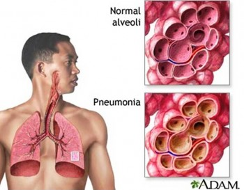 8. Pneumonia e1318356021322 Top 10 Viral Diseases in the World