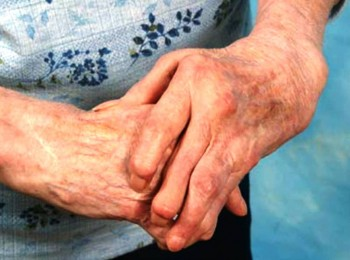 10. Arthritis e1348735837555 Top 10 Diseases of the Elderly