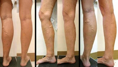 10. Varicose Veins e1349939630105 Top 10 Pregnancy Problems