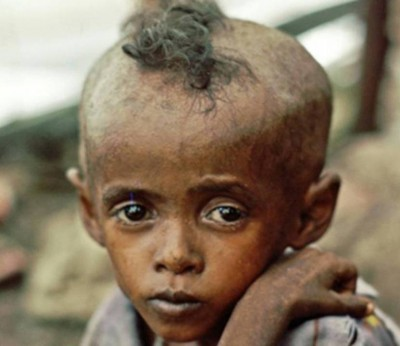 2. Ethiopia e1350405594827 Top 10 Most Malnourished Nations in the World