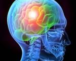 3. Brain InjuryDefects