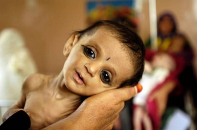 4. Afghanistan e1350405612747 Top 10 Most Malnourished Nations in the World