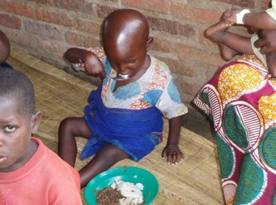 6. Rwanda e1350405630498 Top 10 Most Malnourished Nations in the World