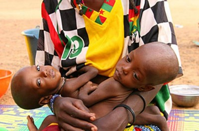 7. Burkina Faso e1350405640532 Top 10 Most Malnourished Nations in the World