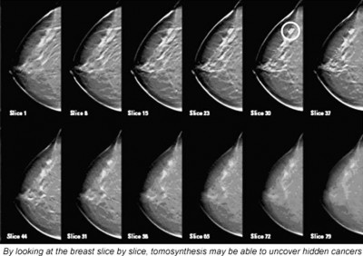 breast tomosynthesis cme 2013 Large multicenter studies demonstrate that digital breast tomosynthesis the new modality training in addition to digital breast tomosynthesis (dbt) cme.