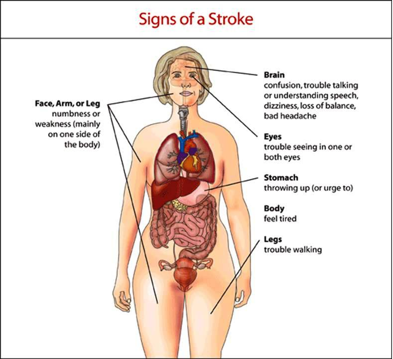 Top 10 Symptoms of Stroke