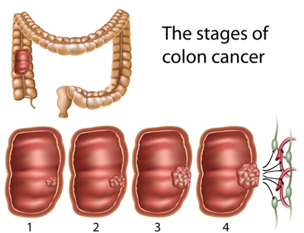 10 Unknown Facts About Colorectal Cancer