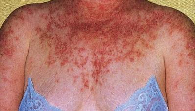 0712 e1312899849477 Top 10 Penyakit Yang Tidak Dapat Sembuh
